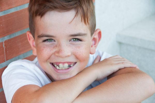 Summer Braces Benefits | Twin Cities Moms Blog