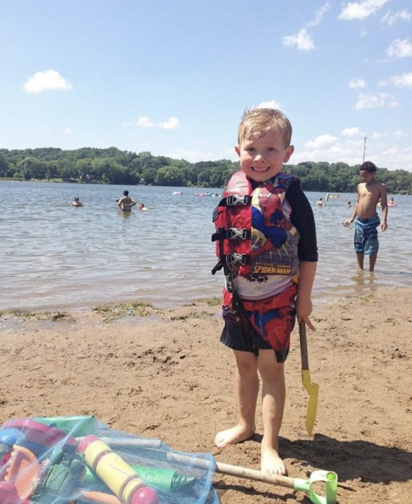 Sunburn Hurts and Skin Cancer Stinks | Twin Cities Moms Blog