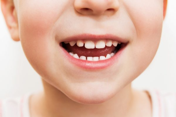 Give Kids A Smile Day: What You Need to Know | Twin Cities Mom Collective